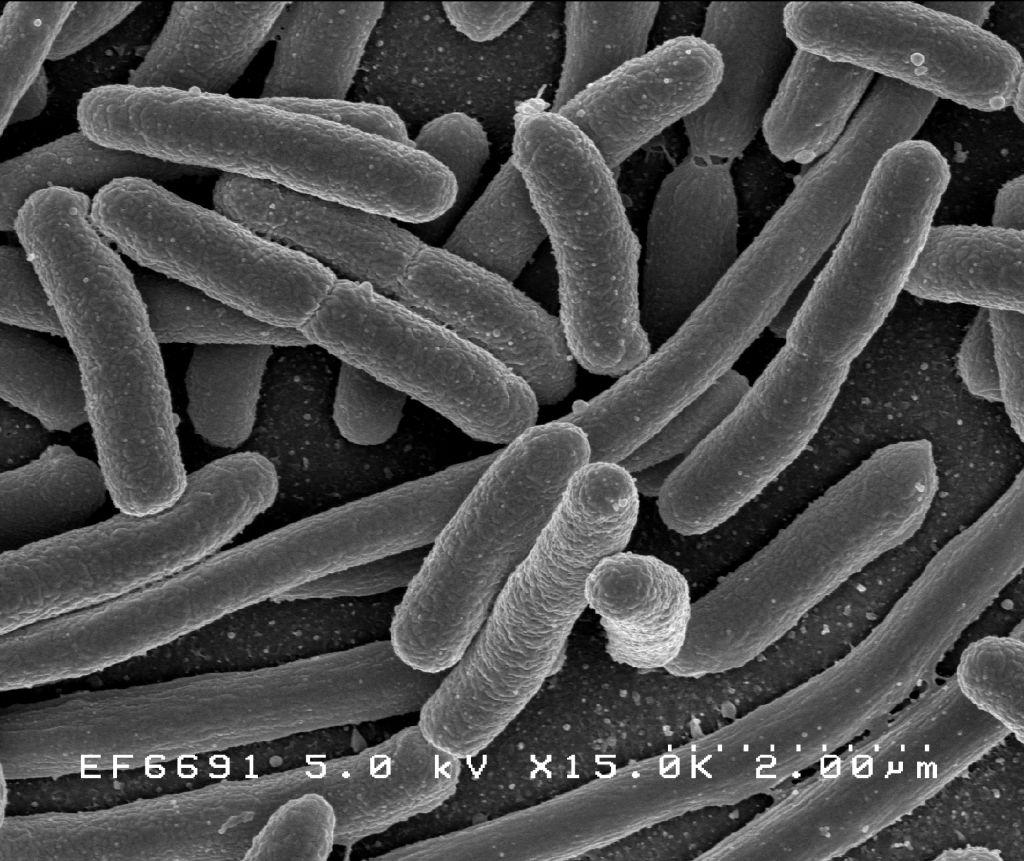 الإيشيرشيا المعوية Escherichia coli