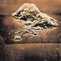 تقترب خلية البلعمة من مستعمرة بكتيريا