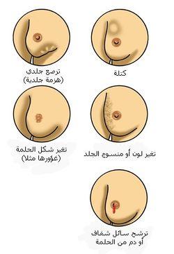 معاً ضد سرطان الثدي : أسبابه , أنواعه , أعراضه , علاجه 250px-En_Breast_canc