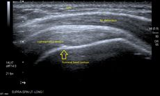 Longitudinal ultra sonography of the supraspinatus tendon