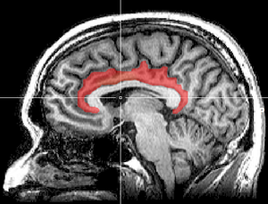 Sagittal MRI slice with highlighting indicating location of the cingulate cortex.