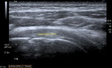 Transversal ultra sonography of the supraspinatus tendon